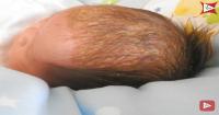 4. Atasi cradle cap atau kerak kulit kepala