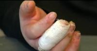 5. Jangan tarik benda menempel luka bakar