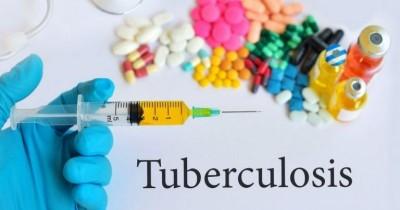 Mengenal Gejala Tuberkulosis pada Anak