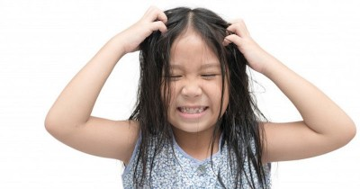 Gatal Minta Ampun, ini 5 Penyebab Masalah Kulit Kepala Anak