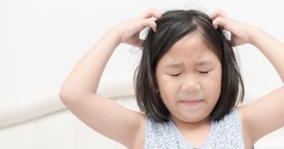 6 Cara Menangani Ketombe pada Anak Balita