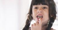 Tanda Perubahan Warna Gigi Anak