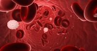 Pengobatan Tepat Setiap Stadium Kanker Darah