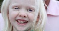 5 Fakta tentang Penyakit Albino