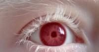 2. Orang-orang menderita albino biasa memiliki gangguan penglihatan