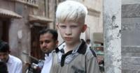 1. Albinisme ada banyak jenis