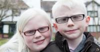 3. Penderita albino rentan terhadap kanker kulit