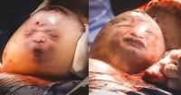 Haru Ini 5 Potret Langka Kelahiran Bayi Kantung Ketuban Utuh