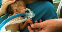 Cara Menambah Berat Badan Bayi Prematur