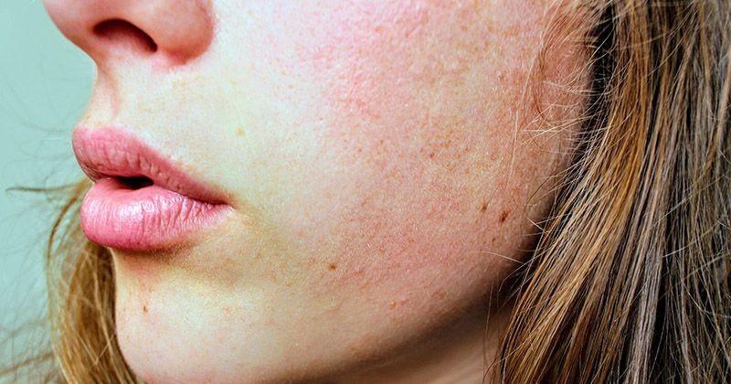 7 Cara Menghilangkan Bruntusan Di Wajah Secara Alami Popmama Com
