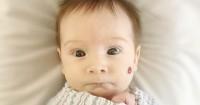 5 Hal Mengenai Tanda Lahir Merah atau Hemangioma Bayi