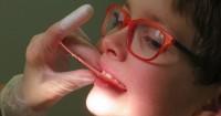 Kapan Saat Tepat Pasang Kawat Gigi Anak