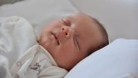 Flat Head Syndrome, Sindrom Mengakibatkan Kepala Bayi Datar