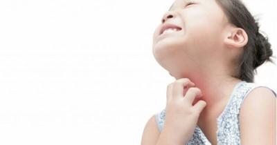 Ringankan Rasa Gatal dengan Rekomendasi Obat Gatal untuk Anak-anak