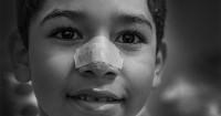 1. Ciri-ciri polip hidung wajib diketahui