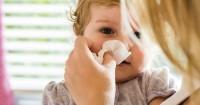 2. Hidung meler mata gatal