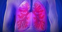 1. Apakah sebenar bronkiolitis itu