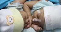 Cara Diagnosis Kembar Siam