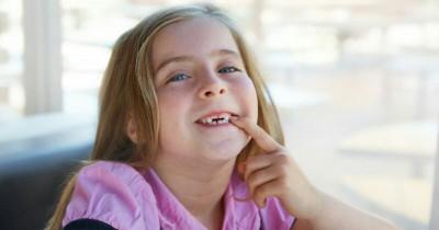 Jangan Ditunda, Gigi Anak Rapuh Harus Segera Dirawat