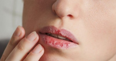 7 Cara Ampuh Mengatasi Bibir Kering saat Puasa