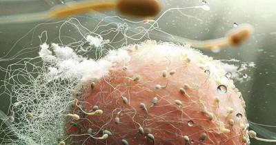 Apa Itu Sperma Abnormal, Penyebab Istri Susah Hamil