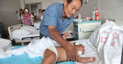 Gigit Puting Saat Menyusu, Bayi 8 Bulan Ditusuk 90 Kali oleh Sang Mama