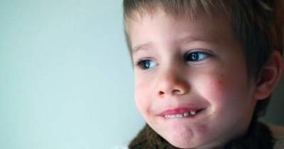Jangan Sepelekan, Cacar Api pada Anak Bisa Sebabkan Komplikasi Fatal