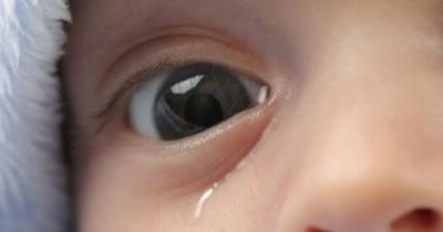 Ma, Cek Disini 5 Hal yang Menyebabkan Mata Bayi Berair