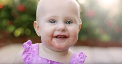 3 Penyebab Gigi Bayi Renggang dan Cara Mengatasinya