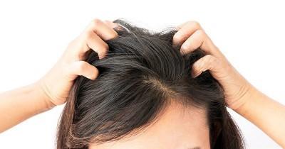 7 Cara Menghilangkan Kutu Rambut Beserta Telurnya Secara Alami