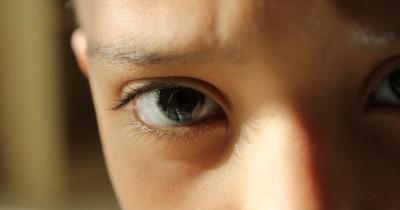 Ampuh! Ini 5 Bahan Alami untuk Mengatasi Mata Belekan pada Balita