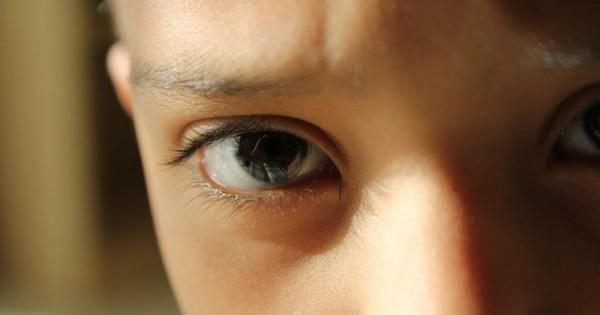 5 Bahan Alami Untuk Mengatasi Mata Belekan Pada Balita Popmama Com