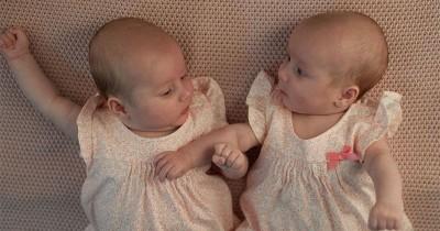 Mengapa Bayi Bisa Terlahir Kembar Siam?