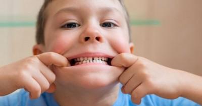 5 Penyebab Gigi Anak Tumbuh Berantakan