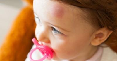 Bayi Sering Memar, Waspada Gangguan Kesehatan Baliknya