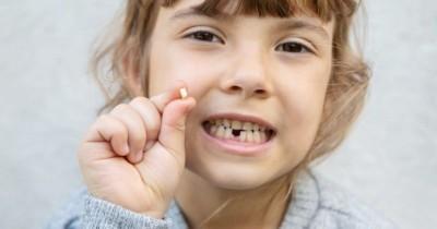 Awas Ini Bahaya Cabut Gigi Balita Tanpa Bantuan Dokter