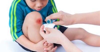 Waspada Tetanus Anak, Ini Gejala Pencegahannya