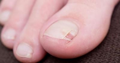 Infeksi Jamur Kuku Kaki Bisa Terjadi saat Hamil, Ini Penyebabnya