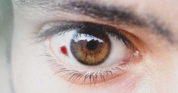 Bercak Merah Pada Mata Apa Penyebabnya Popmama Com