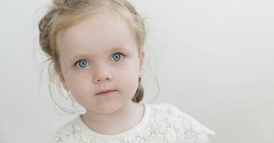 Kenali Gejala, Penyebab Cara Mengatasi Konjungtivitis Anak