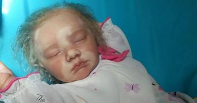 Vitiligo Bayi Jenis, Gejala, Penyebab, Pengobatan