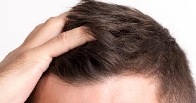 Terasa Mengganggu, Apa Penyebab Jerawat Kepala