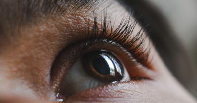 5 Penyebab Kelopak Mata Menghitam