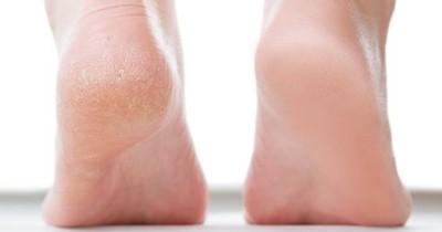 Perhatikan 5 Kondisi Kaki Ini Bisa Prediksi Masalah Kesehatanmu