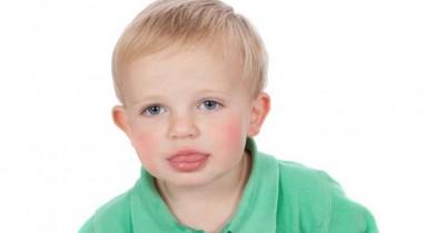 Kenali Gangguan Menjulurkan Lidah atau Tongue Thrust Anak