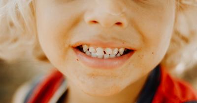 Ketahui Penyabab Gusi si Kecil Berdarah saat Menyikat Gigi