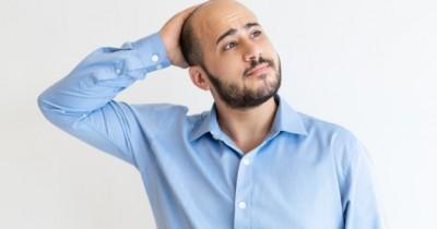 5 Tips Atasi Kebotakan Dini agar Rambut Lebih Sehat Kuat