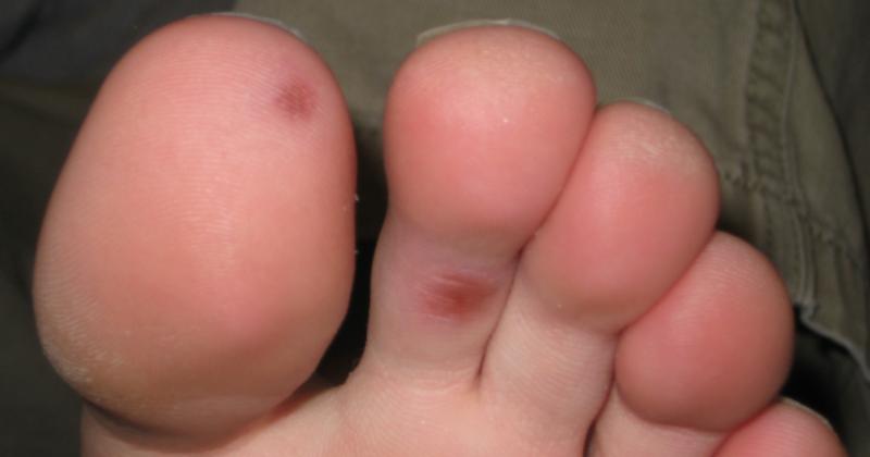 4. Benjolan kaki