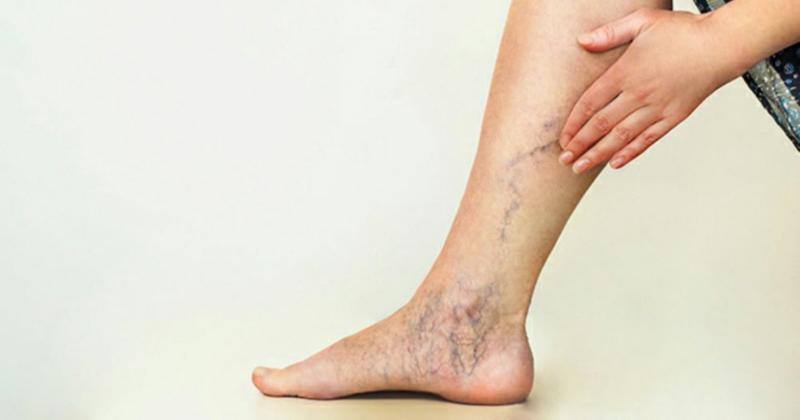 2. Varises kaki
