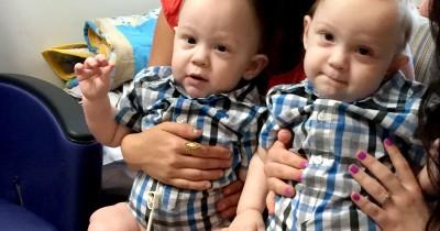 Apakah Genetik adalah Faktor Penyebab Bayi Terlahir Kembar Siam
